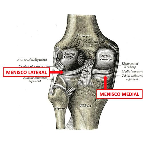 Como ocorre lesões ligamentares