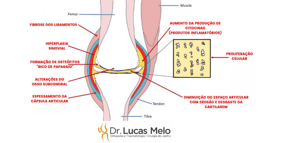 """Read more about the article A artrose não é um simples """"desgaste da cartilagem"""""""