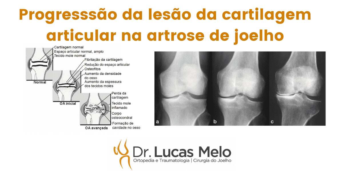 Read more about the article Progressão da lesão da cartilagem na artrose de joelho